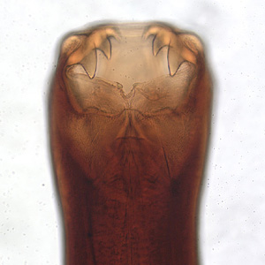 Jaws of  the hookworm, Ancylostoma caninum, a species of hookworm which primarily infects dogs, but can accidentally transfer to humans.  Photo credit: http://www.dpd.cdc.gov/dpdx/HTML/aboutdpdx.htm