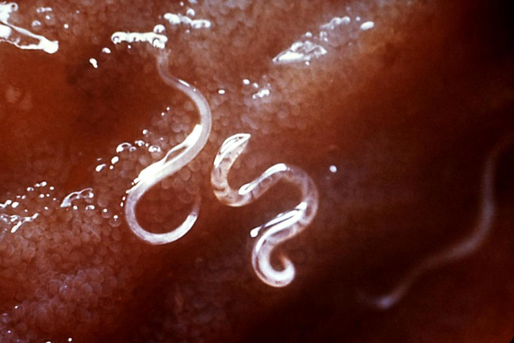 Adult hookworms in the intestine.  Ancylostoma caninum is the species most commonly infecting humans in tropical Africa and Asia.  Photo credit: Centers for Disease Control and Prevention's Public Health Image Library (PHIL), with identification number #5205