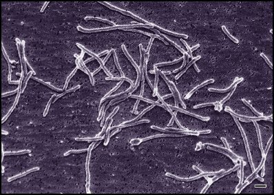 The bacterium that changed genetics (and criminal investigation shows) forever. Image Credit:  Diane Montpetit (Food Research and Development Centre, Agriculture and Agri-Food Canada), wikimedia commons.