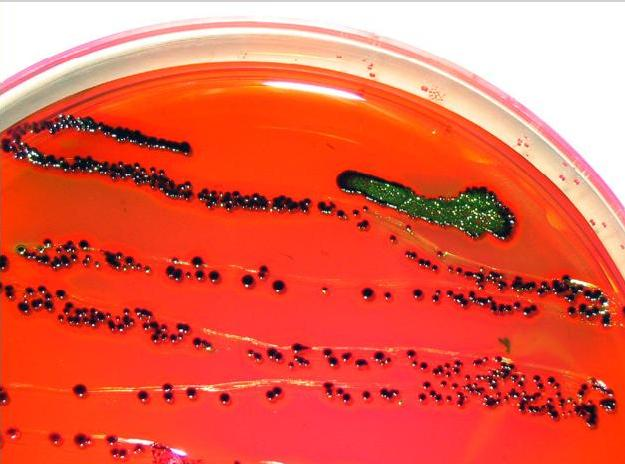 Escherichia coli is abundant in your lower gut. Most strains of E. coli are benign, but several strains are highly pathogenic. Photo courtesy of wikimedia.org.