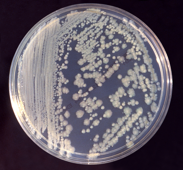 Enterobacter cloacae, another common gut bacteria growing in a Petri dish. Photo courtesy of wikimedia.org.