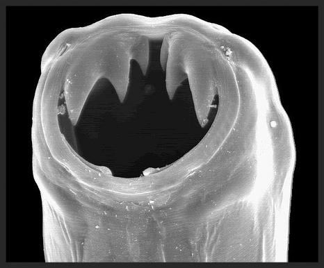 Hookworm (type of Helminth worm).