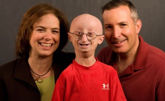 Sam Burns at 16 with Progeria.  Sam passed away the following year.  Photo courtesy of  Digital Journal .