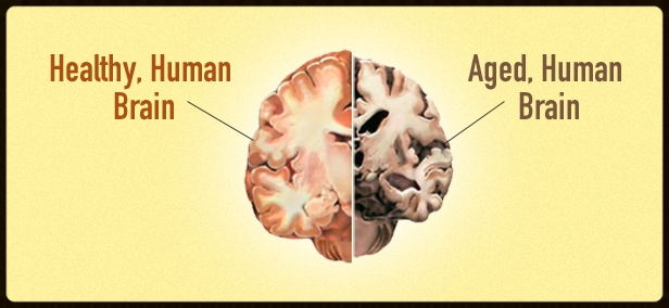 Schematic diagram of a young brain versus an old brain with decreased amount of grey matter. Image from: brainpowerrelease.com.