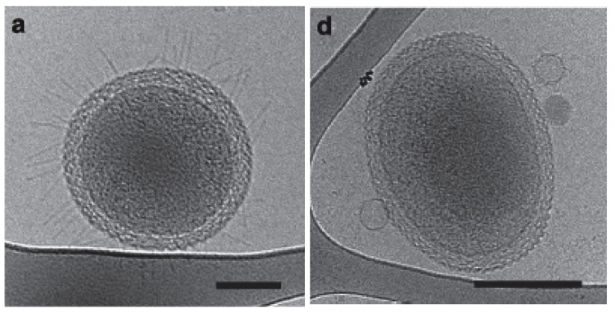 Cryogenic transmission electron microscopy images of ultra-small cells. Left, small appendage structures that are pili-like possibly used for movement and the transfer of required cellular components not encoded by the small genomes. Right, an ultra-small cell with three bacteriophage attaching to the outside. Credit:  Berkeley Lab .