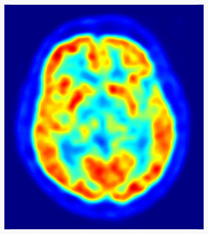 PET scan, public domain, by Jens Langner