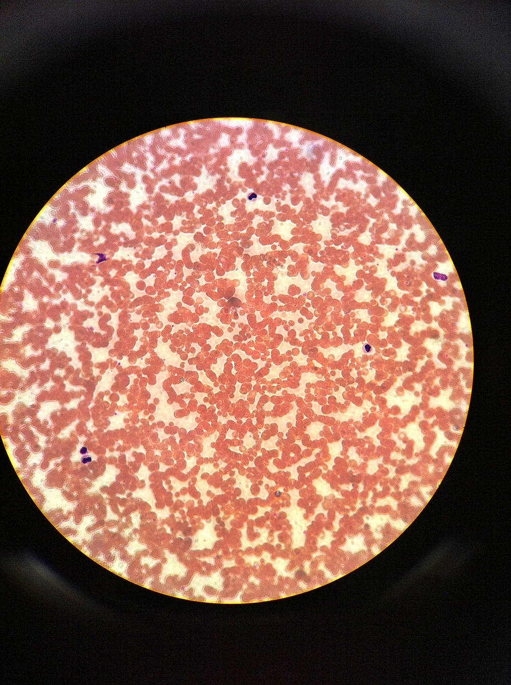 Blood (Wrights stain) Total Mag: 400X