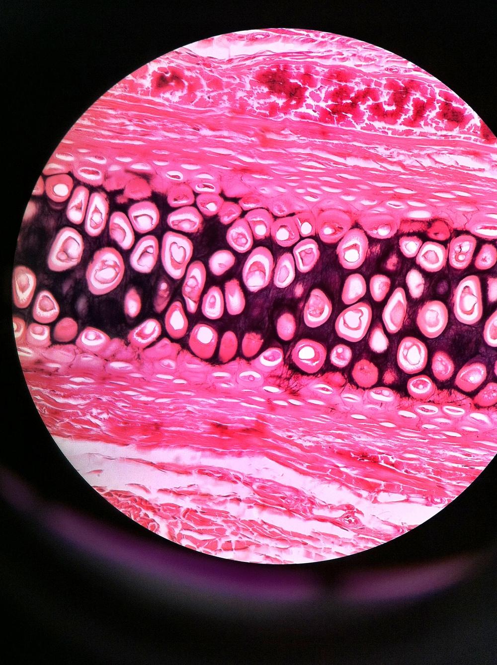 elastic cartilage, (Verhoeff stain) Total Mag: 400X