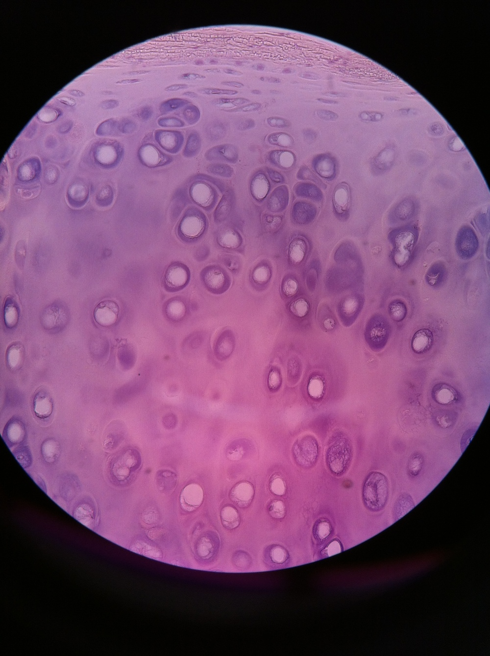 Hyaline cartilage, Total Mag: 400X