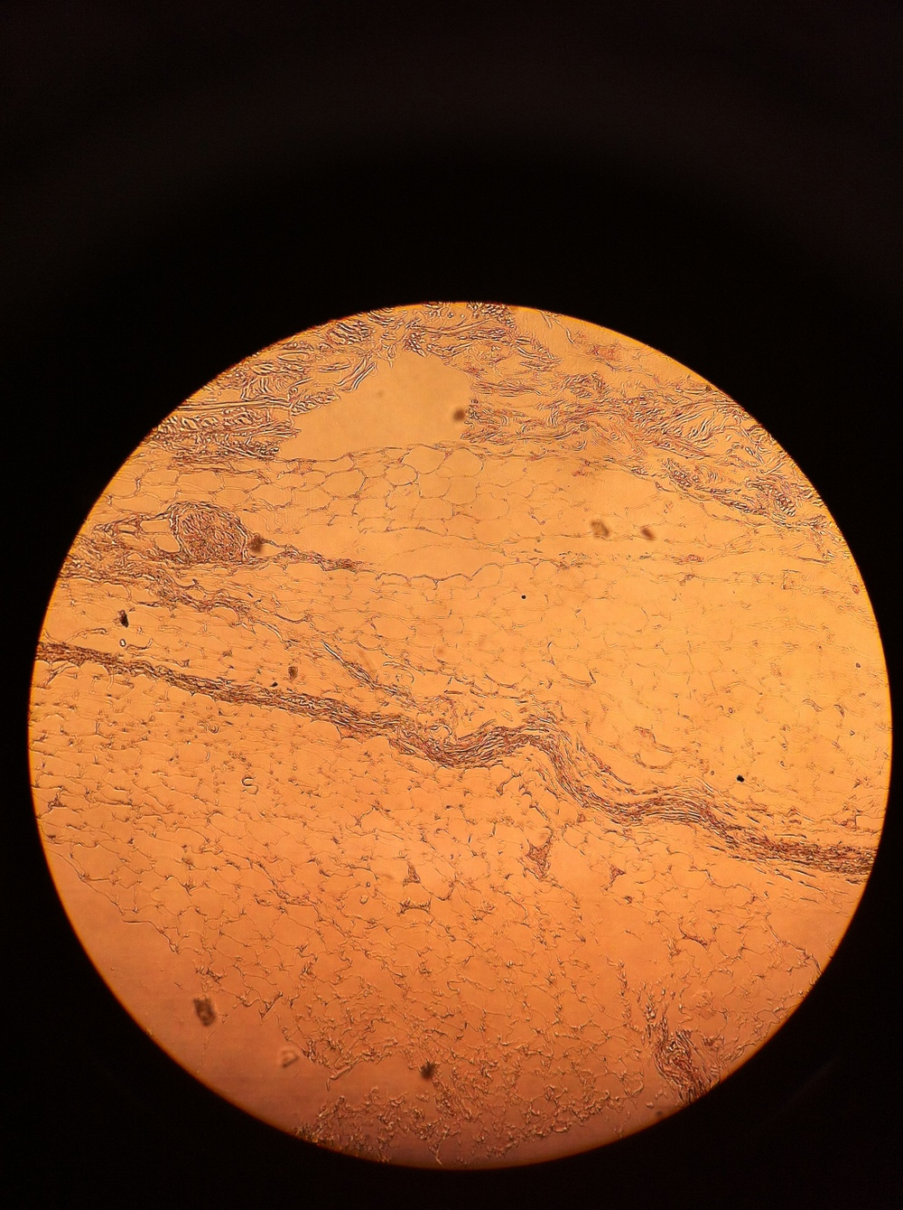adipose (hypodermis), Total Mag: 100X