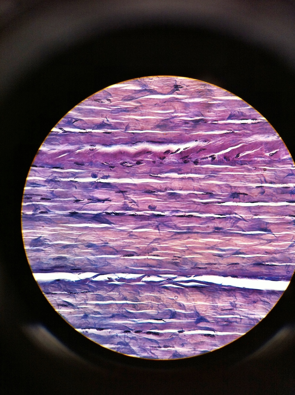 dense regular (white fibrous tissue), Total Mag: 400X