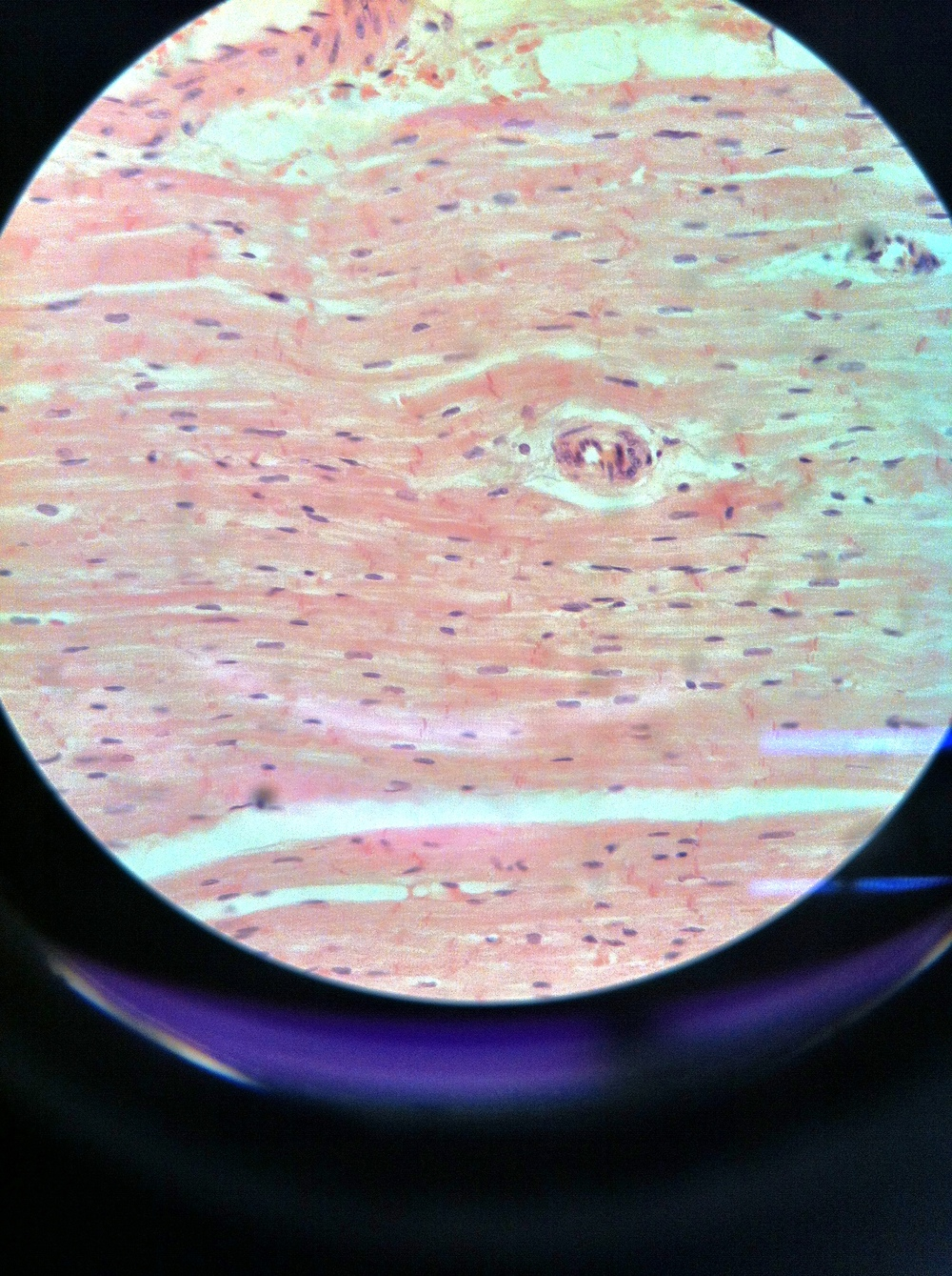 cardiac muscle (ls), Total Mag: 400X