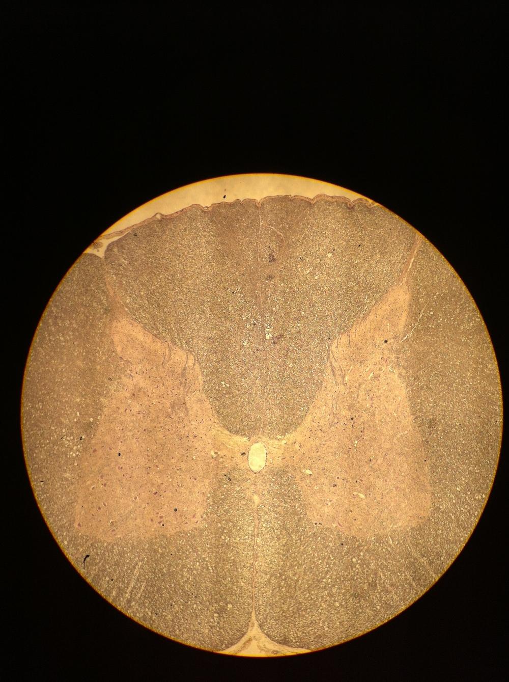 Cervical Spine 40X