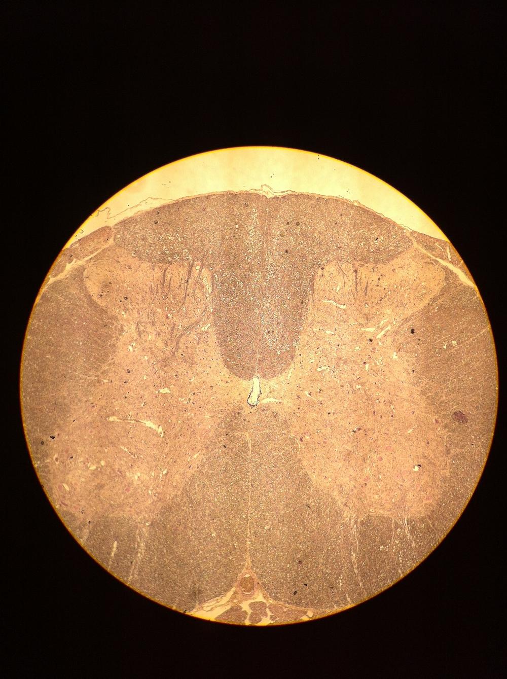 Lumbar Spine 40X