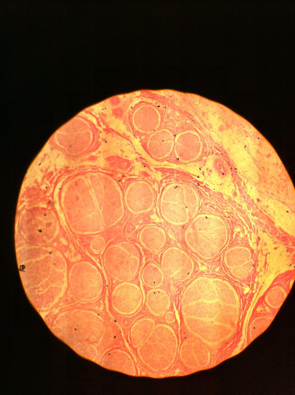 Neuron (cs) 40X