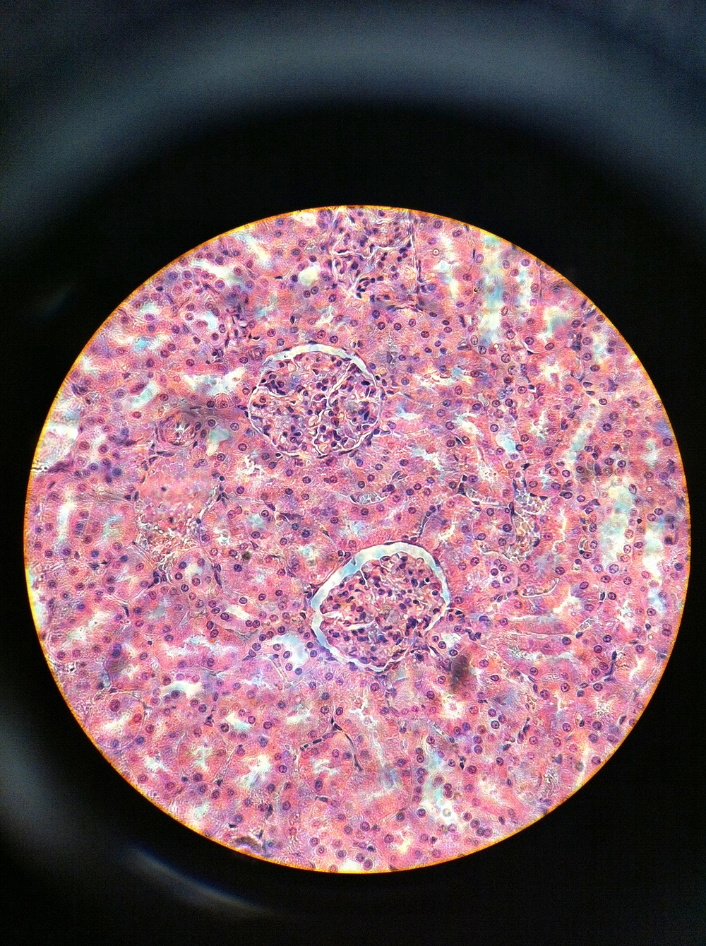 Renal Corpuscle 400X