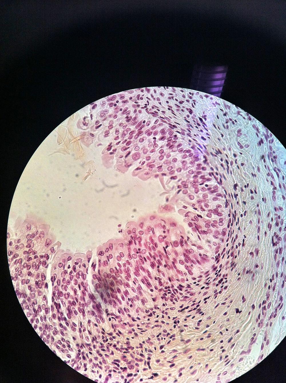 Bladder (transitional epithelium) 400X