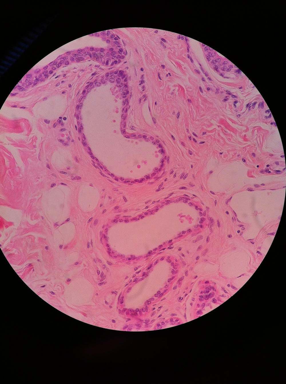 Apocrine Glands, Total Mag: 400X