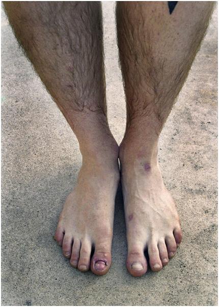 Ryan's toes.