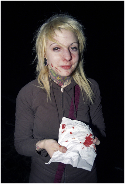 Girl with broken nose.