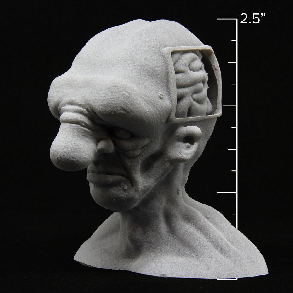 Brain Drainage