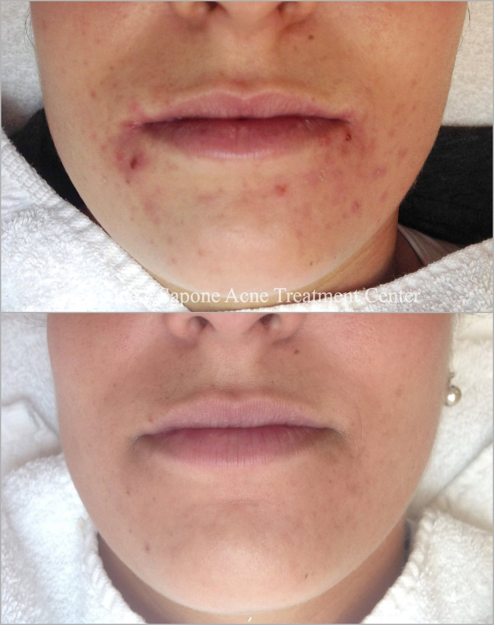 Clearing adult chin acne and redness | Acqua e Sapone Acne Treatment Center SF