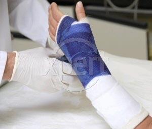 Charlotte hand in plaster