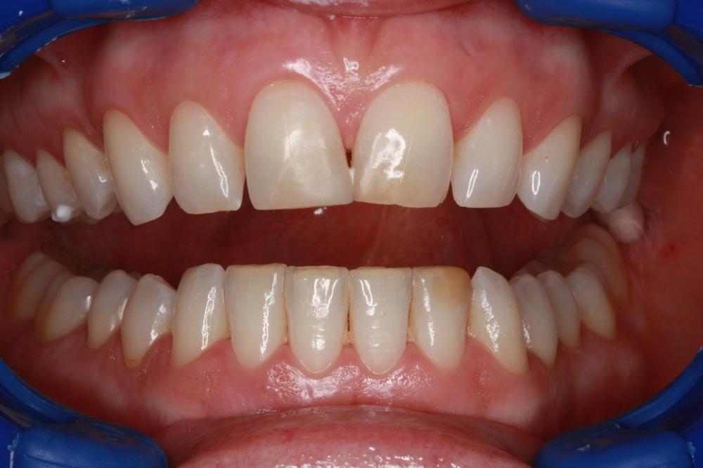 toothwhiteningbefore.JPG