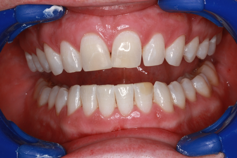 toothwhiteningafter.JPG