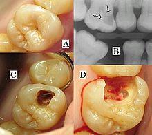 220px-ToothMontage3.jpg
