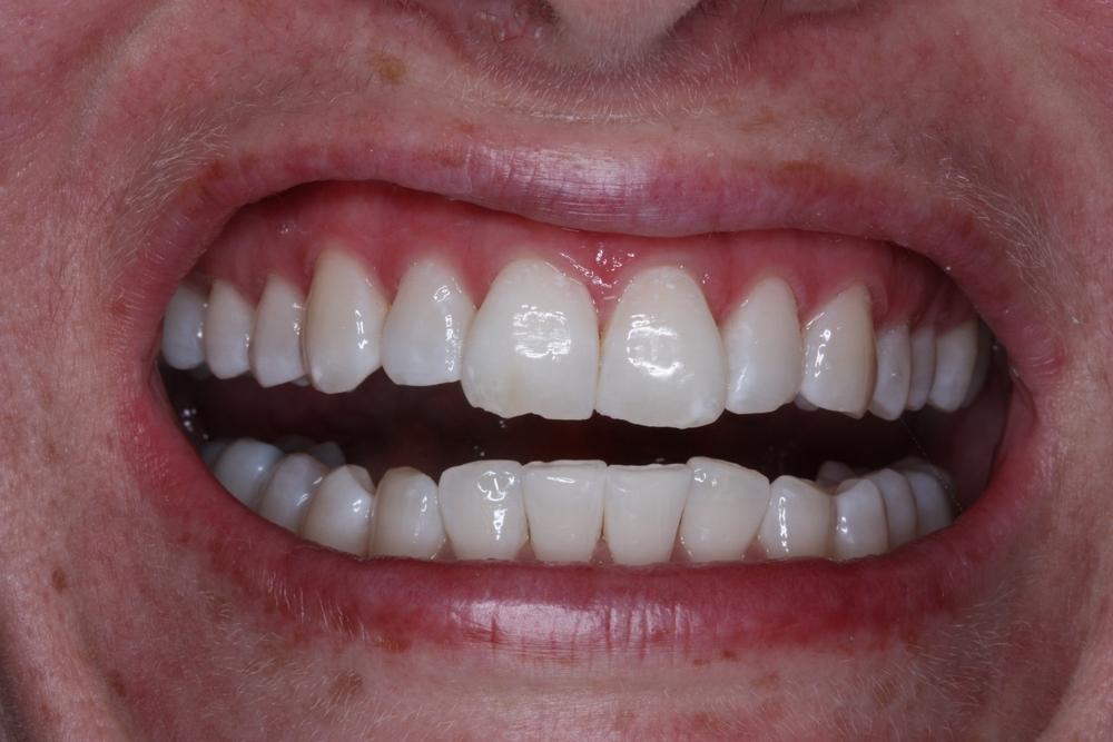 Teeth whitening - cosmetic dentistry brisbane
