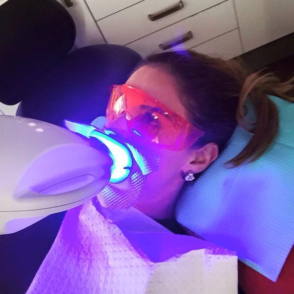 Zoom Whitespeed Teeth whitening
