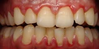 Severe Gingivitis (bleeding, inflamed gums)