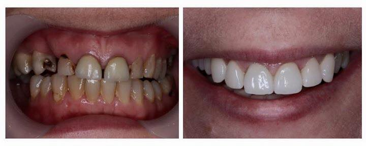 5 Unit BRIDGE AND 4 PORCELAIN CROWNS To Transform This Lady's Smile| patient in 50'S  Dr Leila Haywood | December 2012 | update photo 2016
