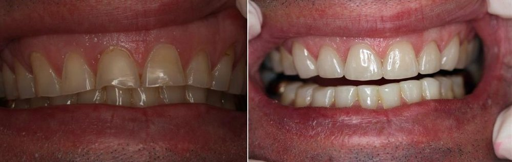 GENTLEMAN IN 40'S with excessive wear and tear of teeth and failing composite resin work. Placement of 6 PORCELAIN crowns on top front teeth | REQUEST FOR NATURAL APPEARANCE Dr Leila Haywood | 2012 | update 2016 replacement of 2 crowns due to chipping under warranty | all other work sound