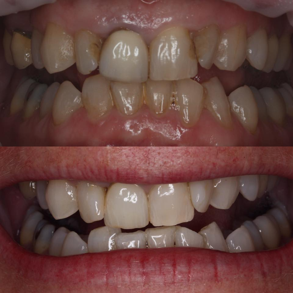 porcelain crown teeth whitening tooth bonding