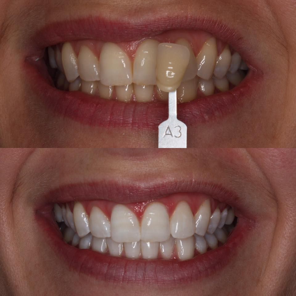 ZOOM TEETH TOOTH WHITENING SMILE