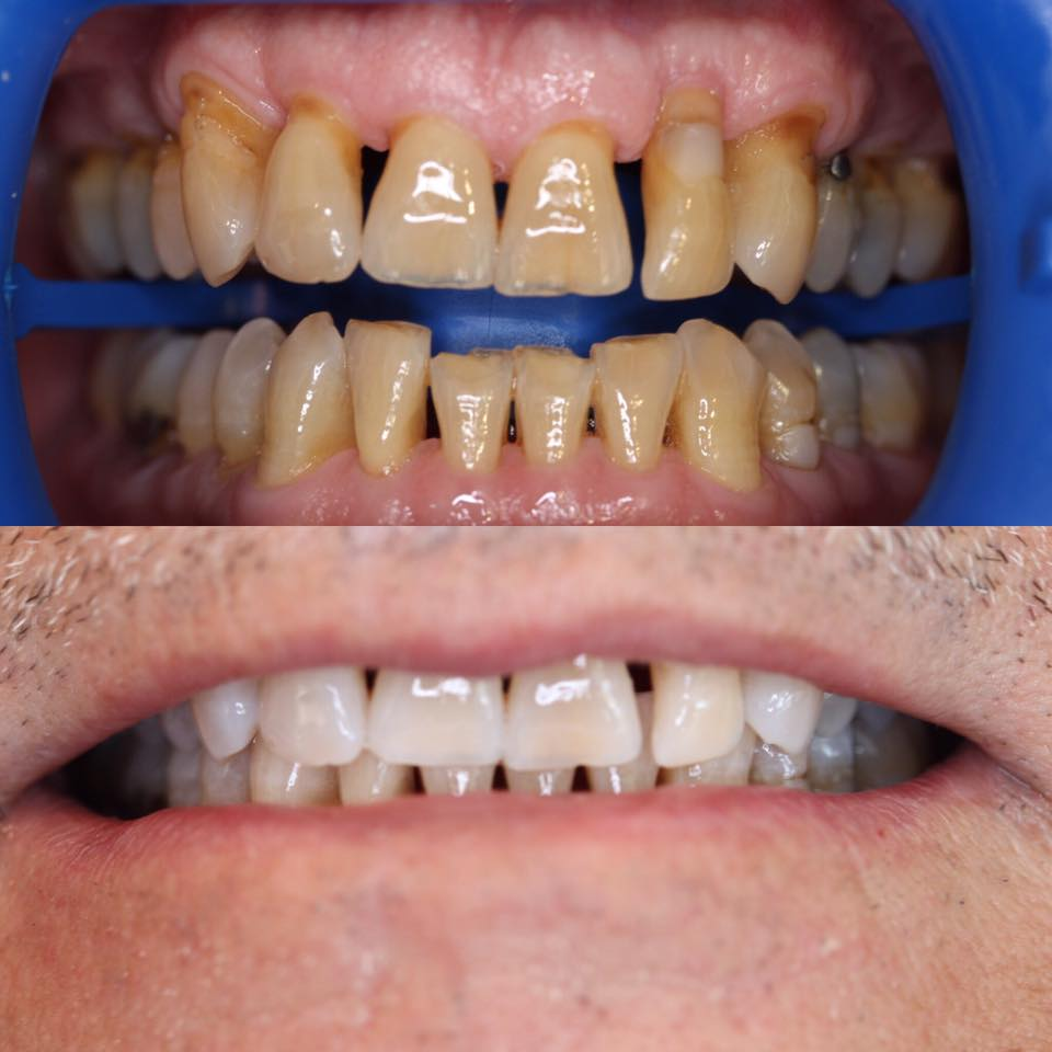 CASE 18 TEETH WHITENING BRISBANE DENTIST ZOOM.jpg