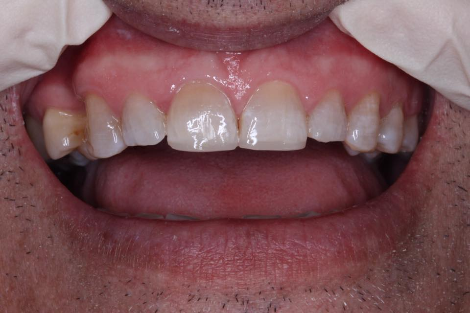 CASE 7 PORCELAIN CROWNS BRISBANE DENTIST.jpg