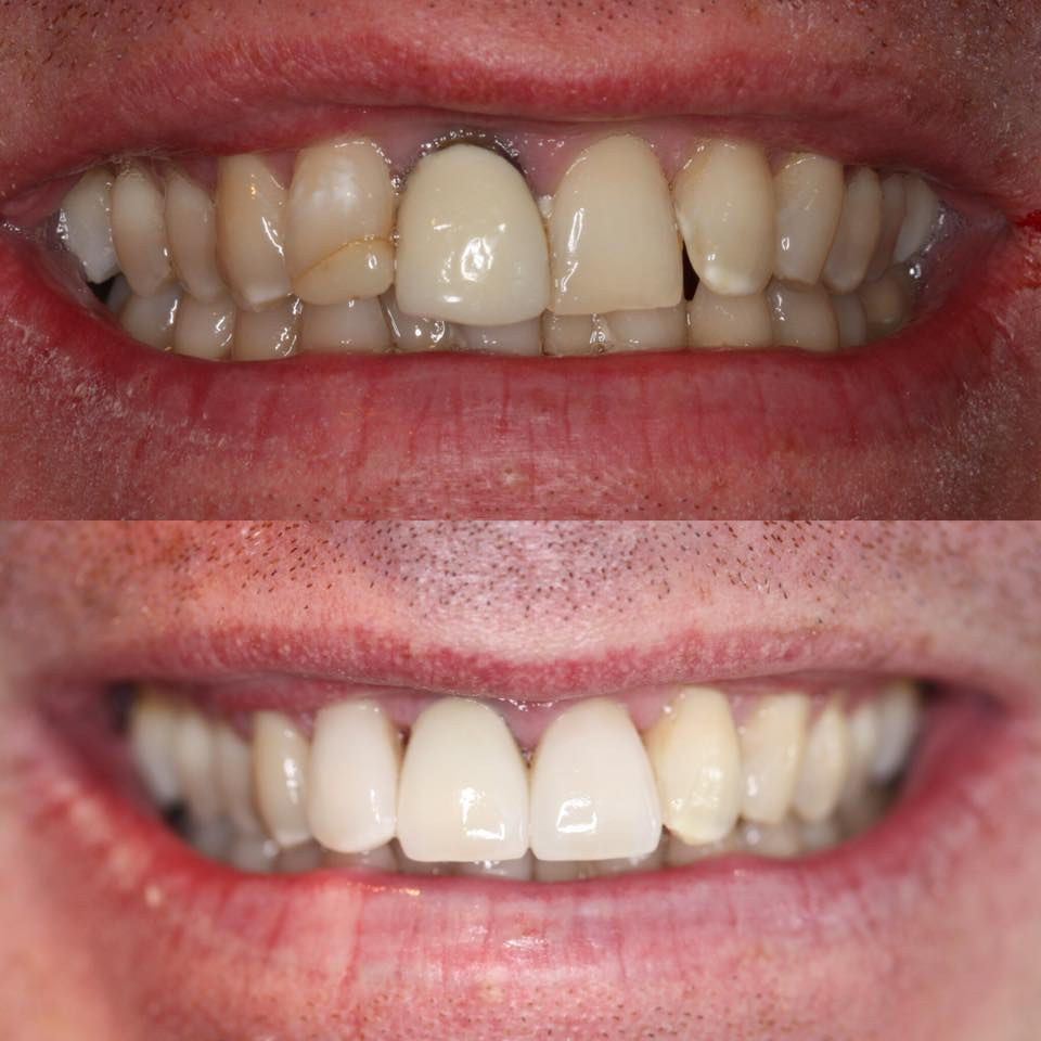 3 crowns and veneer