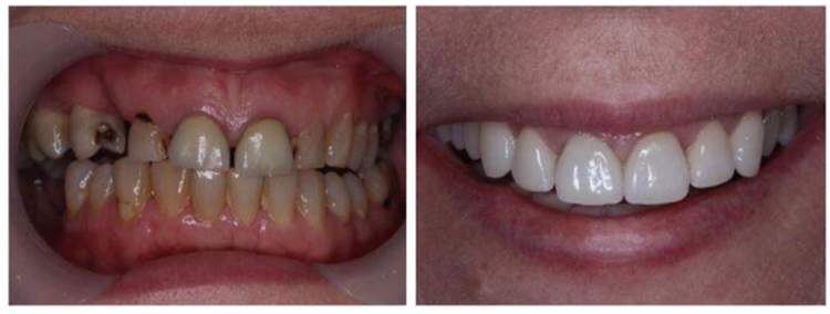 CASE 3 Dental+bridge+zirconia+brisbane.png