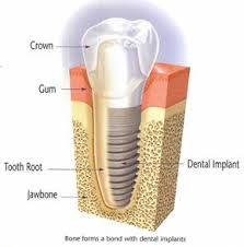 dental implant Brisbane