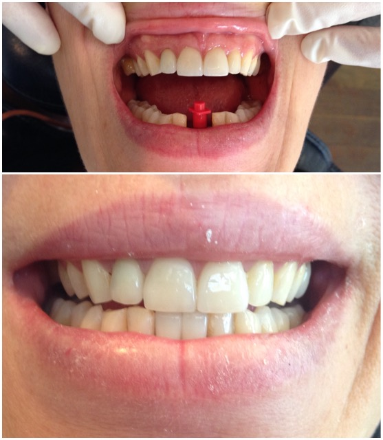 two implant crowns placed on the one implant called a cantilever bridge | LEILA HAYWOOD 2012 | specialist placement of implant fixture