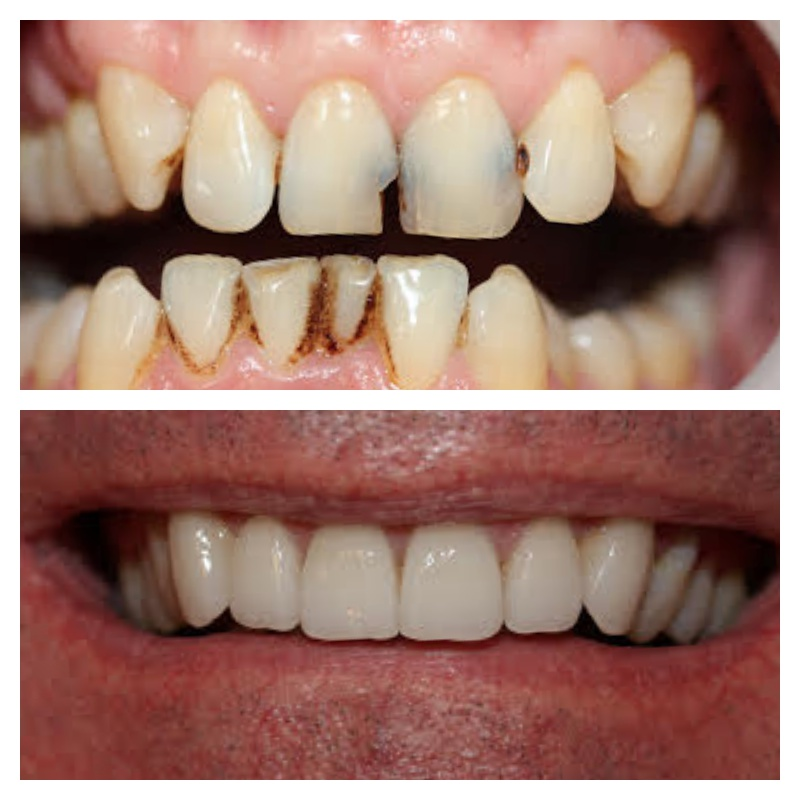 2 crowns, 4 porcelain veneers