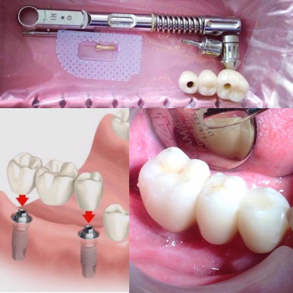 implant bridge for molars