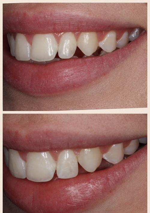 Tooth recontouring and tooth bonding