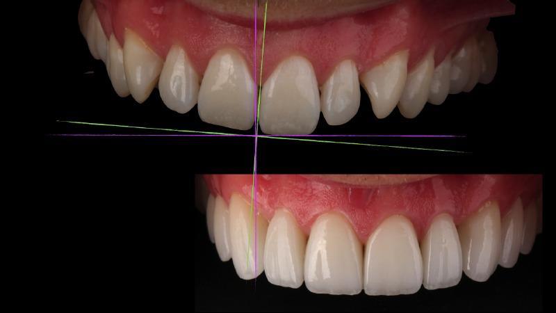 digital smile design brisbane