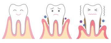 gingivitis