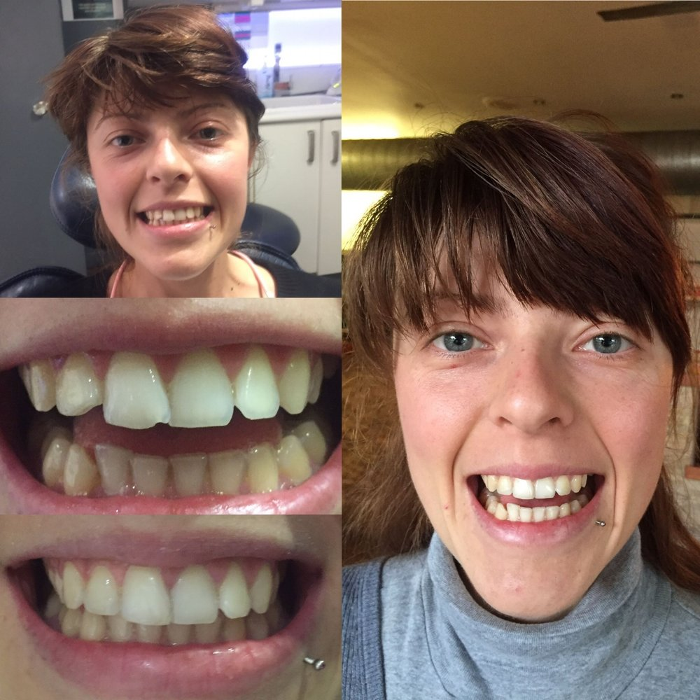 tooth bonding dentist cosmetic smile makeover