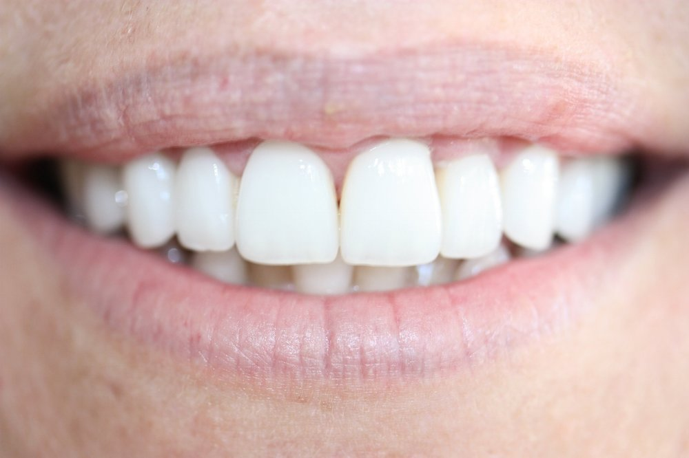 smile makeover porcelain veneers